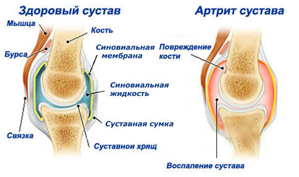 растяжение сухожилия локтевого сустава симптомы