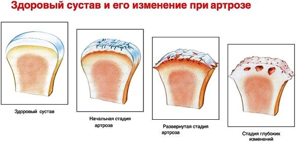 Артроз коленного сустава лечение таганская лечебные китайские бады суставы