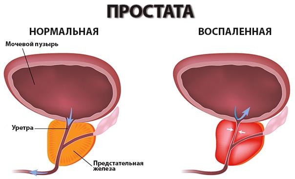 От чего умирают при рак предстательной железы 4