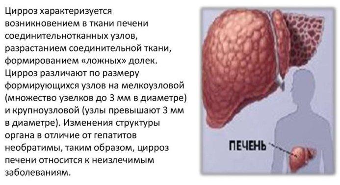 Тест цирроз печени
