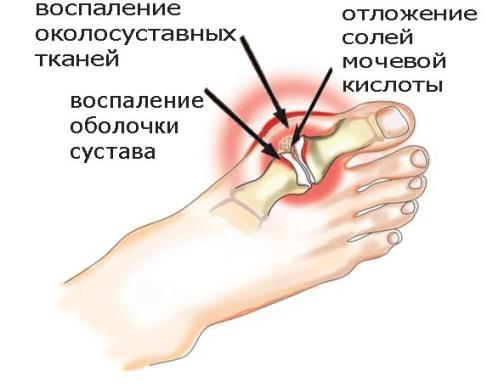 Лечение подагры в Москве - клиника Парамита